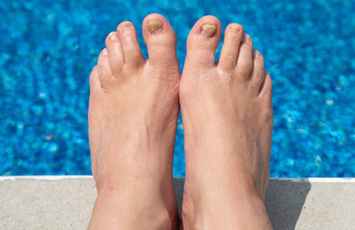 Mycose des ongles : l'onychomycose