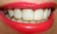 sourire dents blanches bouche rouge