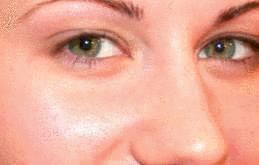 éclaircissant naturel peau