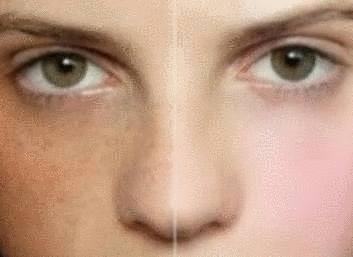 Sur la peau la tache brun foncé