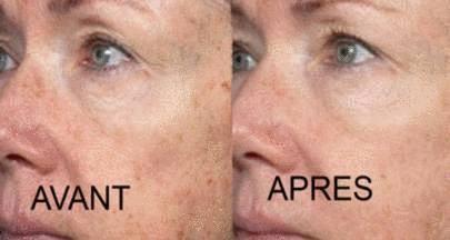 allergie plaque rouge visage