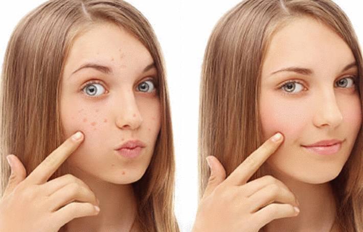 comment traiter l'acné avec des remedes naturels