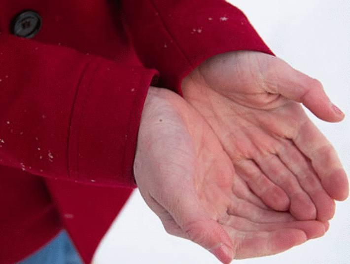 engelures main que faire ?