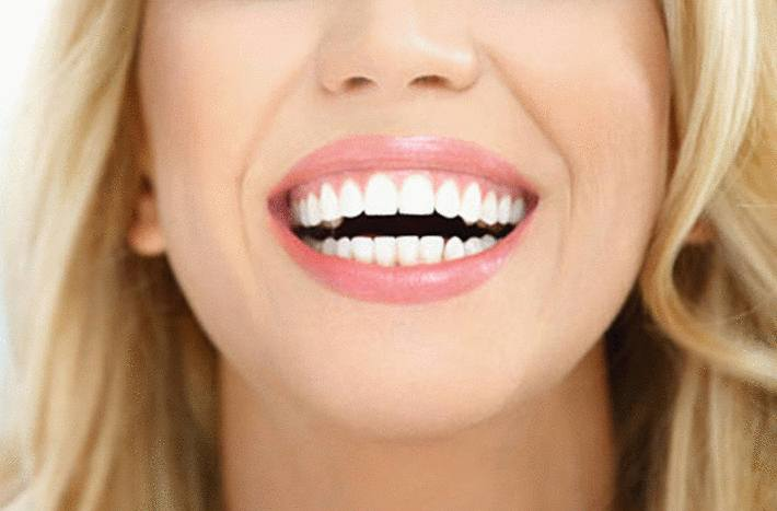 comment ne plus grincer des dents