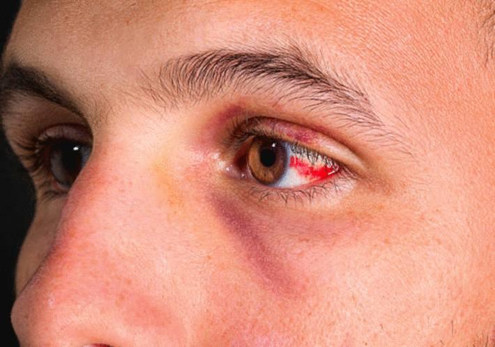 oeil rouge, sang sur l'oeil