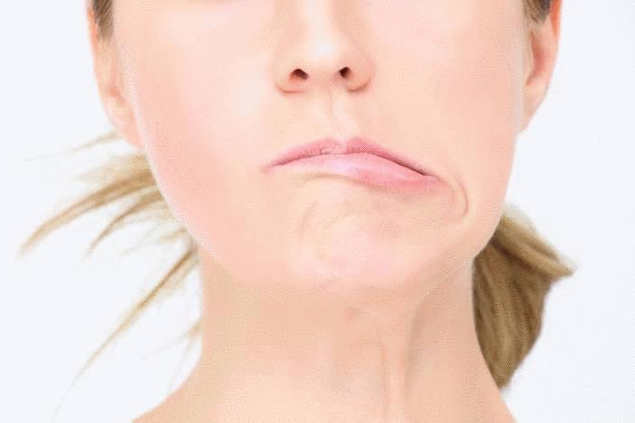AVC symptomes et causes