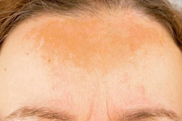 remède naturel pour traiter l'allergie solaire