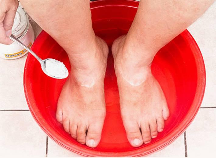 bicarbonate pour soigner pieds douloureux
