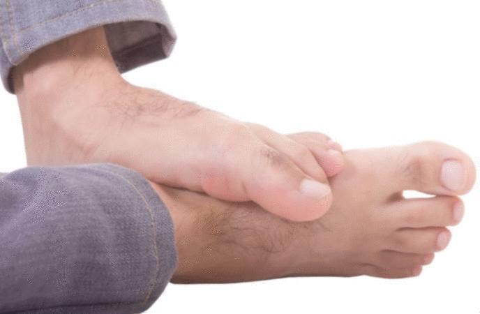 pieds d'athlète - infection entre les orteils