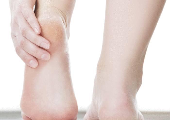 astuce contre talon fendillé et pied sec