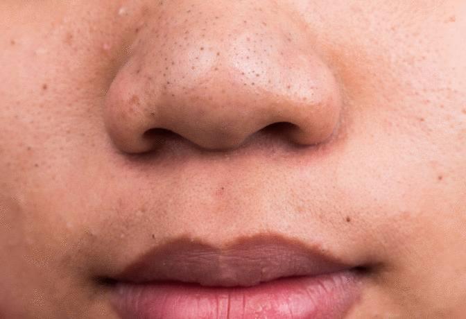 astuce contre les points noirs nez