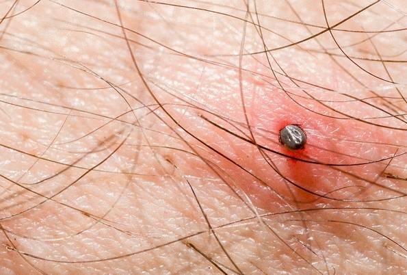 tiques  et maladie de Lyme