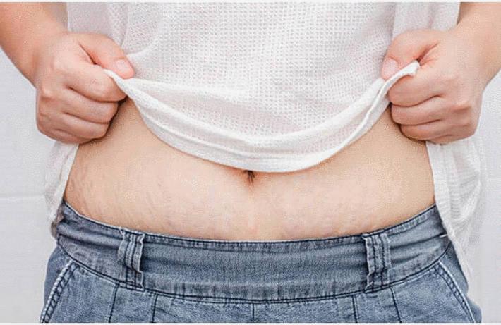 Contre les vergetures : 10 remèdes nuturels pour effacer les vergetures