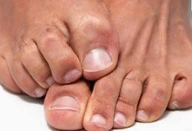 boutons pieds transpiration