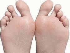 demangeaison mycose pied