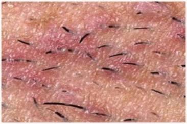 remede poil sous peau